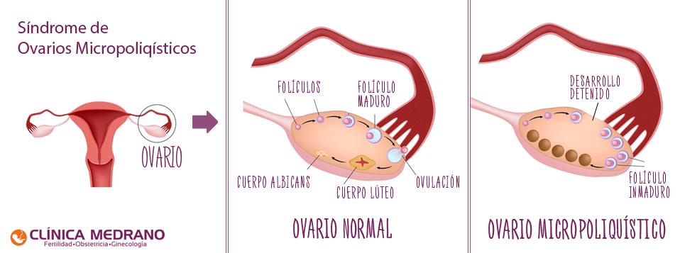 Ovario-poliquistico-algeciras